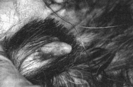 Клитор стероиды кленбутерол аптеки москва
