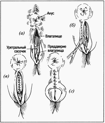 название расстояния между анусом и вагиной