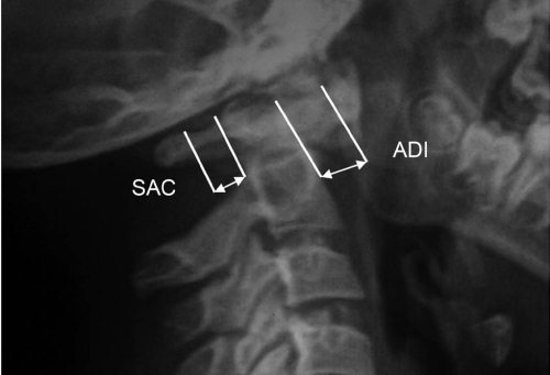 Сустав крювелье это тамография плечевого сустава в спб